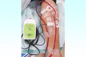 【支援成功事例】(株)アワジテック ✕ NIRO「33万人の透析患者に、安心と安全を届けるセンサー」